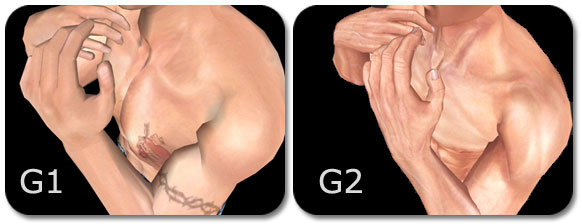 iClone g1 g2 skintexture Higher Skin Texture Detail