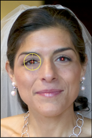 Figure. Image showing a Red Eye target overlay placed over a subject's red eye.