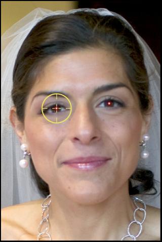 Figure. Image affichant un repère Yeux rouges sur les yeux rouges du sujet.