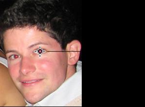 ta bort röda ögon