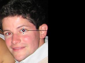 Kırmızı göz bebeği üzerine yerleştirilmiş kırmızı göz aracının görüntüsü